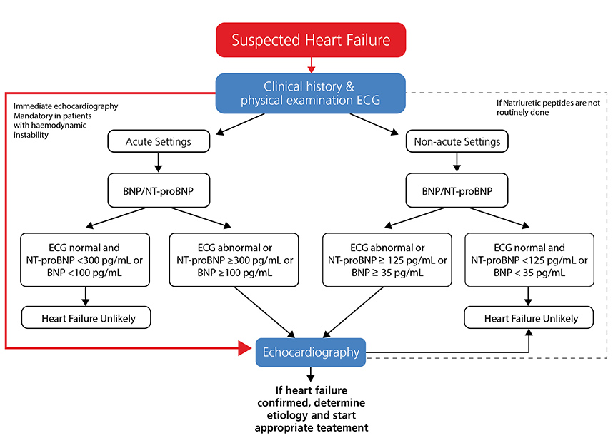 Adapted from 2016 ESC guidelines  ESC guidelines for the diagnosis and treatment of acute and chronic heart failure.  Eur Heart J doi:10.1093/eurheartj/ehw128